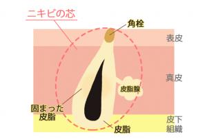 nikibi-shin