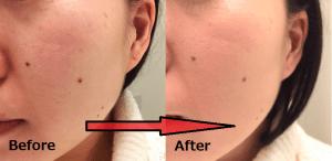 ayanasu-before-after