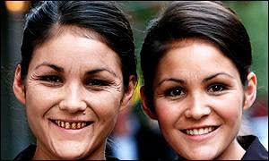 スモーカーズフェイス 22歳の双子の女性