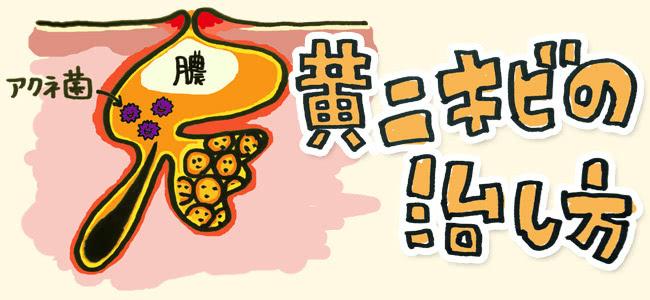 黄ニキビ・化膿ニキビのケア・治し方【跡に残りやすく痛がゆい!】