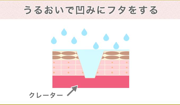 クレーター跡 保湿