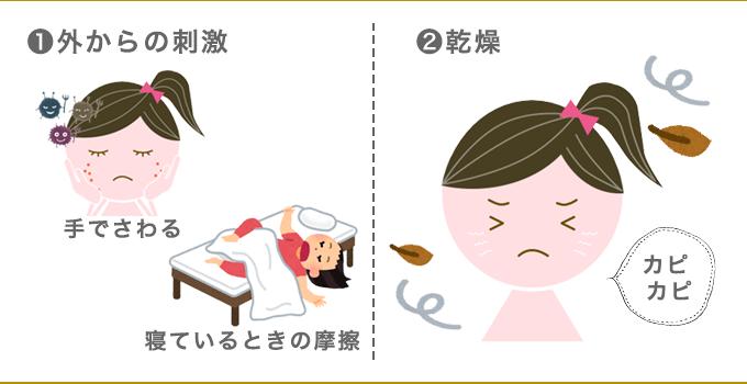 ほほニキビニキビの原因は外部刺激と乾燥