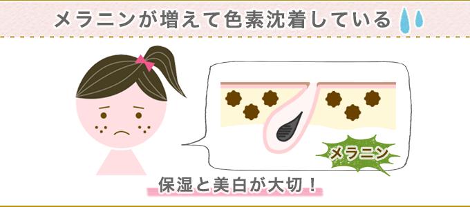 茶ニキビ跡