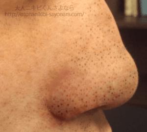 毛穴の汚れ