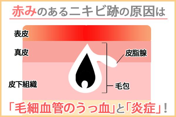 赤みのあるニキビ跡の原因