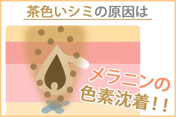 茶色いシミ・ニキビ跡の原因はメラニンの色素沈着