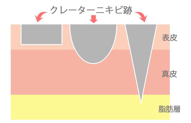ニキビ跡の種類
