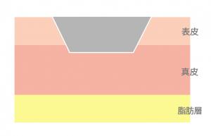 浅斑状瘢痕(せんはんじょうはんこん)