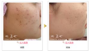 湘南美容皮膚科 症例1