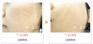 湘南美容皮膚科 症例2