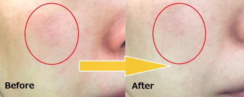 パルクレール美容液 before-after