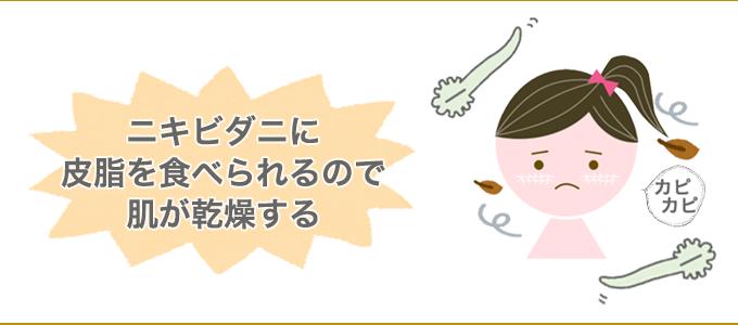 ニキビダニ 肌 乾燥