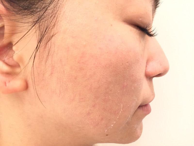 プロアクティブ+スキン スムージング クレンザーでの洗顔後の状態