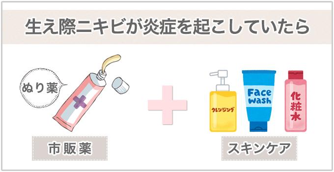 生え際ニキビ 市販薬+スキンケア