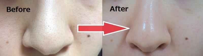 エマルジョンリムーバー before-after
