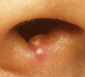 鼻の穴ニキビ