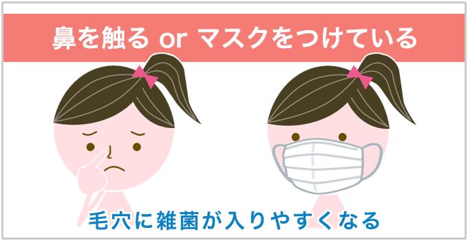 いちご鼻 マスク