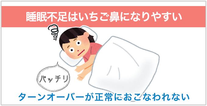 いちご鼻 睡眠不足