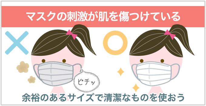 ニキビ痛い マスク