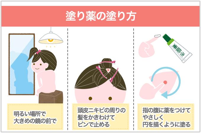 頭皮ニキビ 薬の塗り方