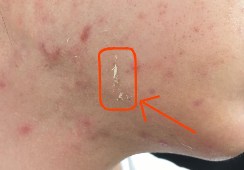 幹細胞&フェイシャルによる皮向けの写真