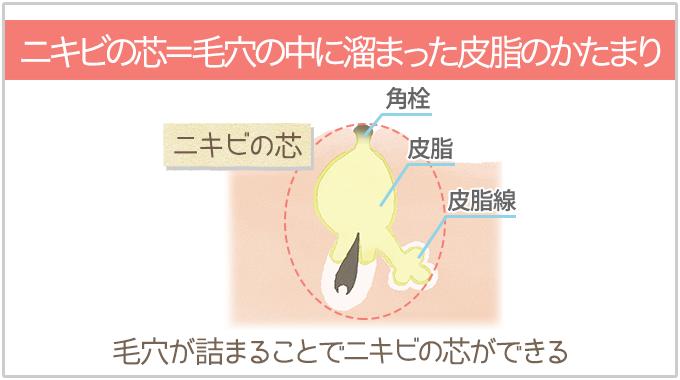 ニキビの芯とは毛穴の中にたまった皮脂のかたまり