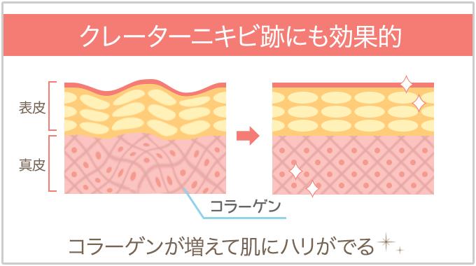 コラーゲンを増やして凸凹ニキビ跡を目立たなくする