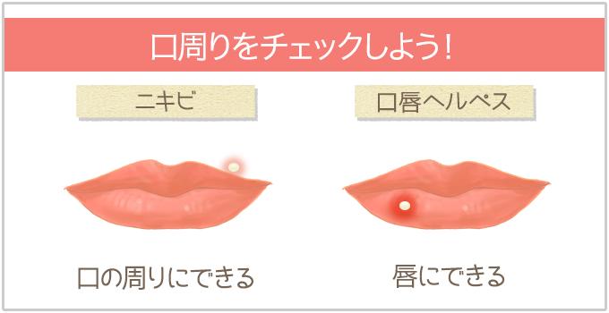ニキビと口唇ヘルペスの違い